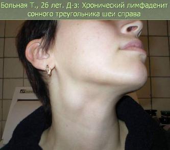 Увеличенные лимфоузлы у беременных на шее 61